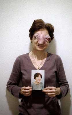 20080321172603-eutanasia-1.jpg
